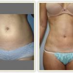 Miami City Liposuction