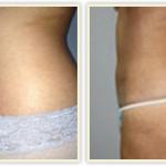 liposuction doctors in Miami