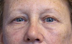 After Blepharoplasty photo in 550 Biltmore Way, Suite 120, Coral Gables, FL, 33143